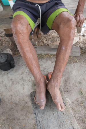 lepra: la enfermedad de Hansen, las manos del primer del hombre de edad que sufren de lepra, se alza la amputación