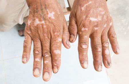 desorden: trastorno de la piel Foto de archivo