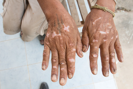 Skin disorder on hand 版權商用圖片