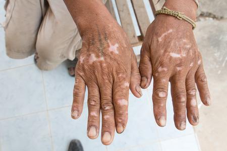 desorden: trastorno de la piel en la mano