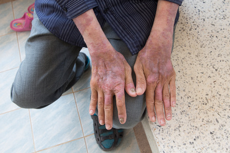 atopic: Skin disorder in back hand Stock Photo