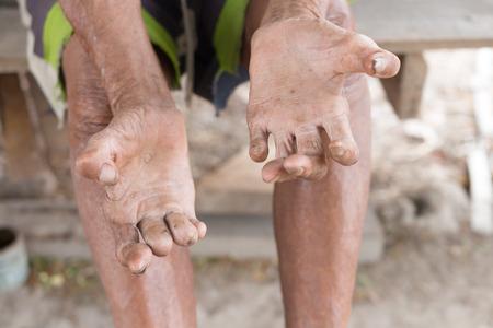 lepra: la enfermedad de Hansen, las manos del primer del hombre de edad que sufren de lepra, la amputación de manos