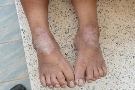 trastorno: trastorno de la piel en los pies Foto de archivo