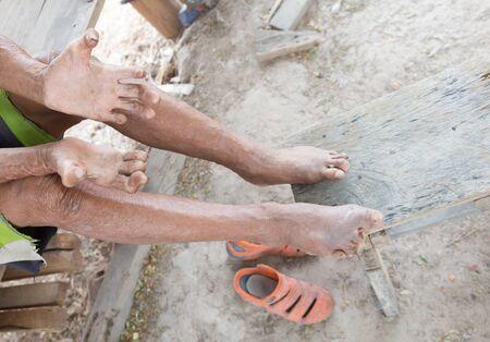 lepra: la enfermedad de Hansen, las manos del primer del hombre de edad que sufren de lepra, se alza la amputaci�n