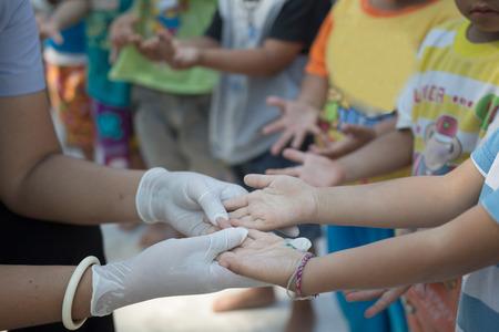 Ręcznie pryszczycy stóp u dziecka