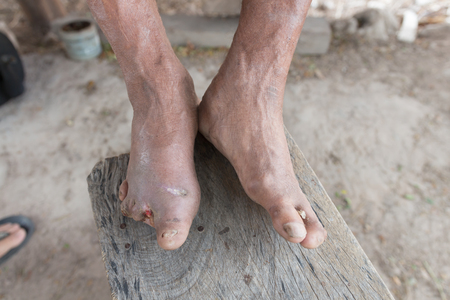 amputated: Hansens disease,closeup hands of old man suffering from leprosy, amputated foots Stock Photo