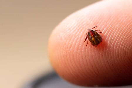 Tick filled with blood sitting on human skin. Stock Photo