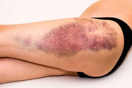 Close-up op een grote blauwe plek op gewonde vrouw been huid tot op witte deken Stockfoto - 54781300