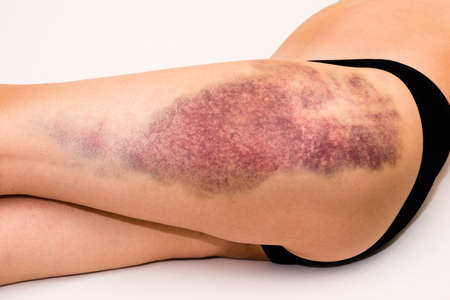 Closeup on a large bruise on wounded woman leg skin laying on white blanket Standard-Bild