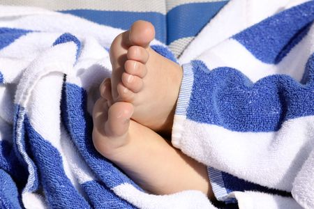 child's feet crossed footed resting on a white and blue striped towel showing rough and peeling skin on the sole of the foot Stock Photo