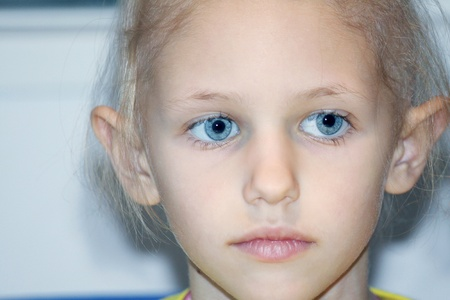 a caucasian child suffering hair loss due to chemotherapy to cure cancer Stock Photo - 9159114