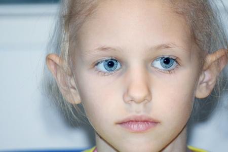 un niño caucásico sufrir pérdida de pelo debido a la quimioterapia para curar el cáncer Foto de archivo