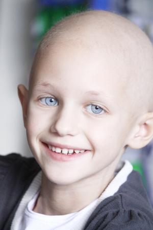 una niña caucásica con pérdida del cabello debido a cáncer sonriendo a la cámara Foto de archivo
