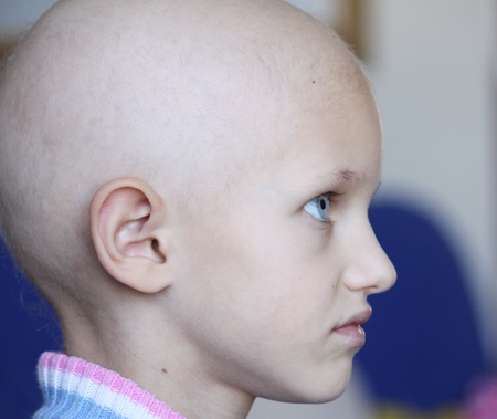 bald girl: profile of a beautiful girl suffering from cancer showing hair loss