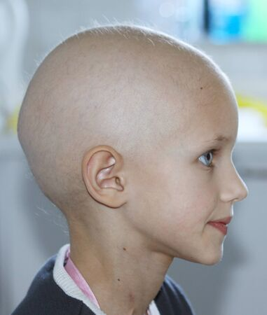 bald girl: profile of a caucasian child showing hair loss due to chemotherapy treatment for cancer