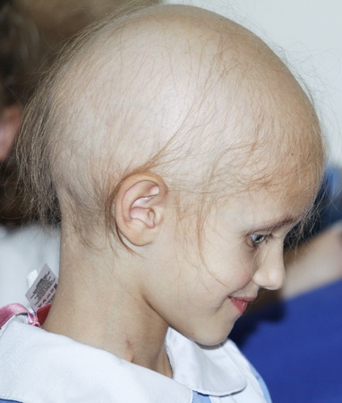 a caucasian girl with hair loss due to chemotherapy treatment for cancer