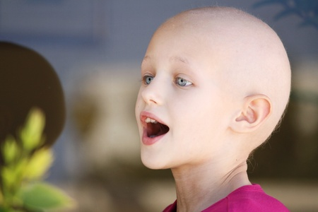 caucasian girl portrait of a bald head due to chemotherapy treatment having a conversation photo