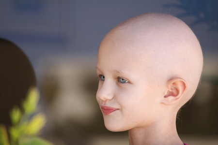 bald girl: portrait of a caucasian child suffering hair loss due to chemotherapy treatment to cure cancer