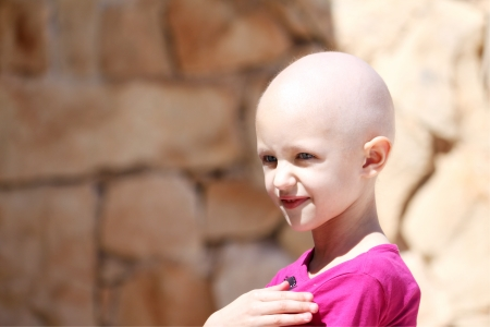 bald girl: child with hair loss fighting cancer Stock Photo
