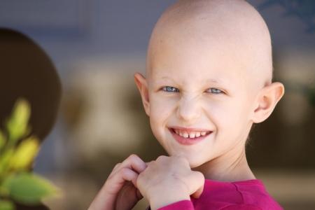 niño feliz con la pérdida de cabello debido a la quimioterapia Foto de archivo