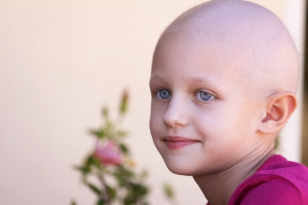bald girl: beautiful girl with cancer