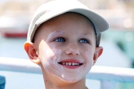 bald girl: child with cancer and a lovely smile  Stock Photo