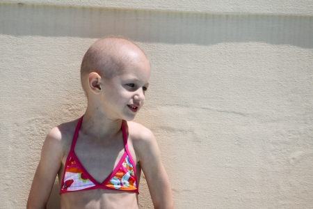bald girl: child recovering from cancer Stock Photo
