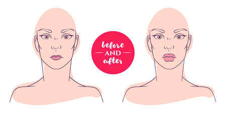deficiencies: Portrait of a woman before and after with cosmetic defects. Plastic surgery and correction of deficiencies in appearance. Increase thin lips. Correction of the shape of the lips