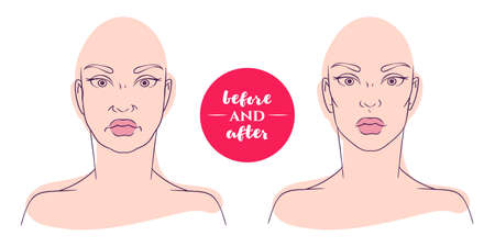 deficiencies: Portrait of a woman before and after with cosmetic defects. Plastic surgery and correction of deficiencies in appearance. Correction of an oval face. Sagging cheeks.