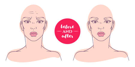 deficiencies: Portrait of a woman before and after with cosmetic defects. Plastic surgery and correction of deficiencies in appearance. Wrinkles on forehead