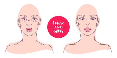 Porträt einer Frau vor und nach mit kosmetischen Mängeln. Plastische Chirurgie und Beseitigung von Mängeln im Aussehen. Blepharoplasty. Hernie unteren Augenlider Standard-Bild - 57255762