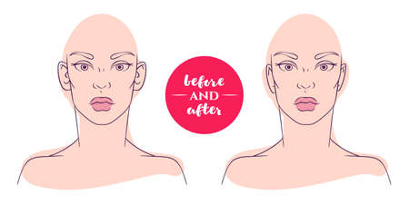 protruding: Portrait of a woman before and after with cosmetic defects. Plastic surgery and correction of deficiencies in appearance. Otoplasty. Protruding ears Illustration