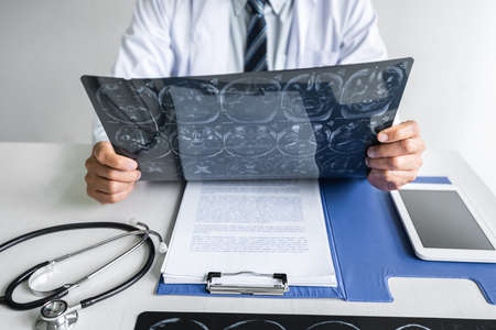 Doctor hands holding patient brain x-ray film before treatment and analyzing treat method. Stock Photo