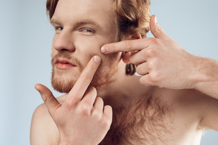 Red haired young man squeeze out pimple on cheek. Male hygiene. Morning hygiene procedures. Isolated on grey background. Studio portrait. Acne. Skin care.