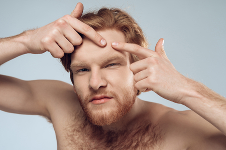 Red haired young man squeeze out pimple on forehead. Male hygiene. Morning hygiene procedures. Isolated on grey background. Studio portrait. Acne. Skin care. Stock Photo