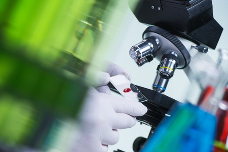 non la: Laboratory scientist holding a slide containing a blood sample with microscope in the background