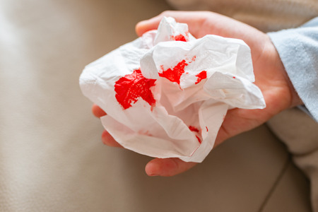 kids hand with bloody tissue Stock Photo