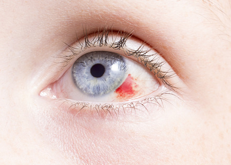 eye exam: close up of a bloodshot eye looking up damage by an injury . Stock Photo