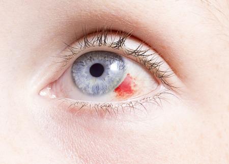 hemorragia: primer plano de un ojo inyectado en sangre buscar da�os por una lesi�n. Foto de archivo