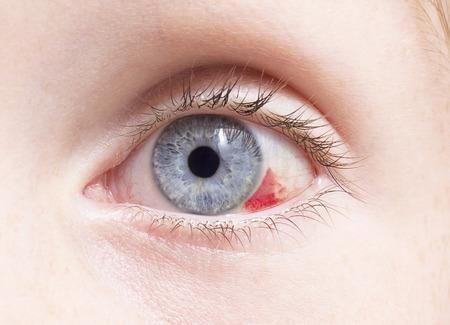 hemorragia: Primer plano de un ojo inyectado en sangre daños por una lesión.