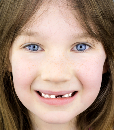 milk tooth: Head shot of a young happy smiling girl with blue eyes missing her first milk tooth