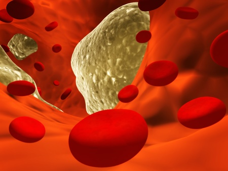 Atherosclerosis - clogged artery and erythrocytes photo