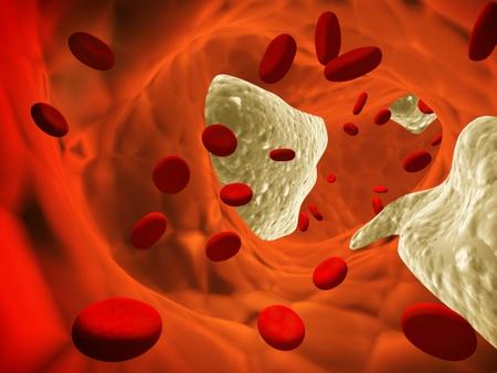 erythrocyte: Aterosclerosi - arteria ostruita ed eritrociti