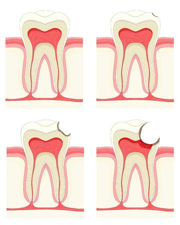 mal di denti: Vector set - dente. Processo di decadimento