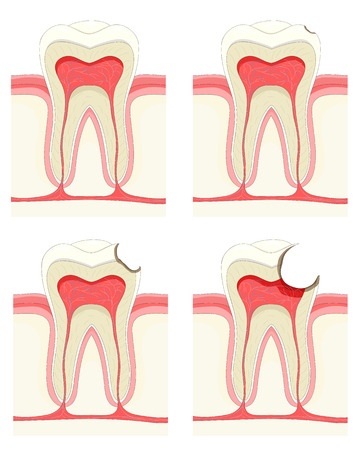 tooth decay: Vector set - tooth. Decay process