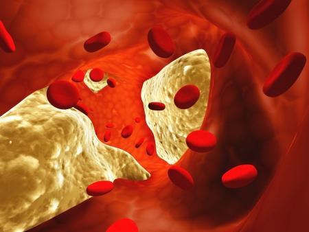 Atherosclerosis - clogged artery and erythrocytes