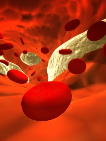Atherosclerosis - clogged artery and erythrocytes Stock Photo - 9661284