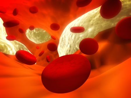 cholesterol: Atherosclerosis - clogged artery and erythrocytes