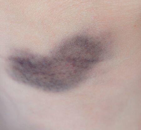 Bruise. Close-up photo