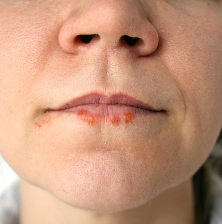 Cold sores. Herpes labialis. Close-up photo